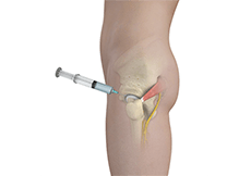 Hip Injections